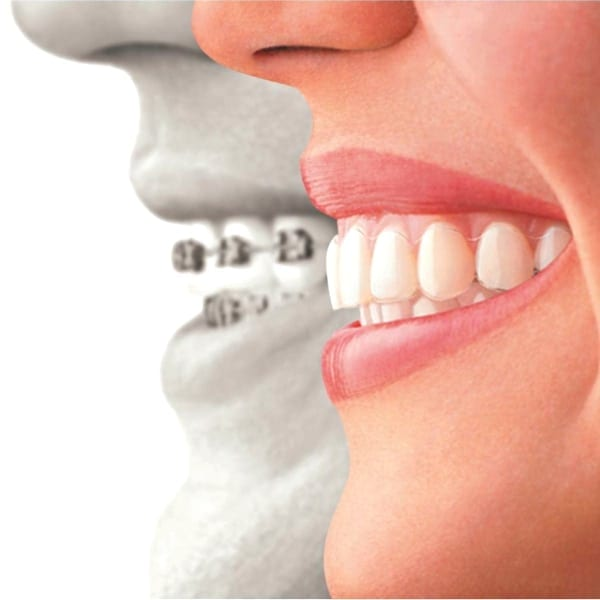 Close up of traditional metal braces and invisible aligners